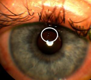 corneal forgein body